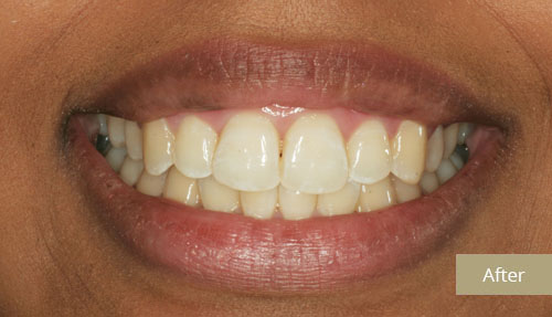 Invisalign Contouring After 1