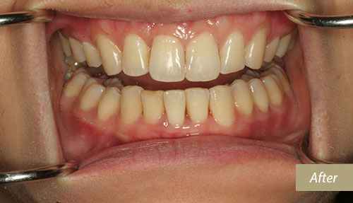 Invisalign After 6