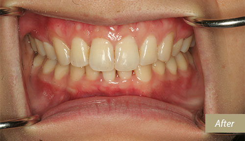 Invisalign After 7