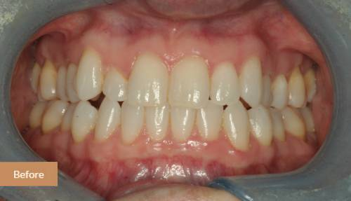 Invisalign london before