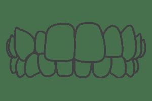 Crossbite – London Braces Clinic