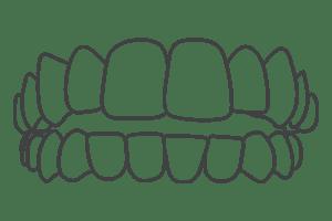 Opening Bite – London Braces Clinic