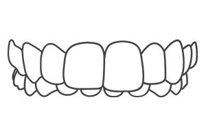 Overbite London Braces Clinic