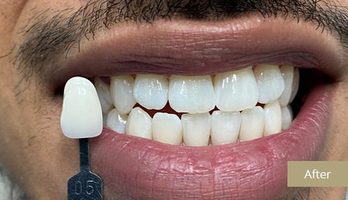 Teeth Whitening - After 1