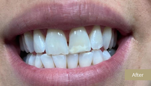 Teeth Whitening - After 2
