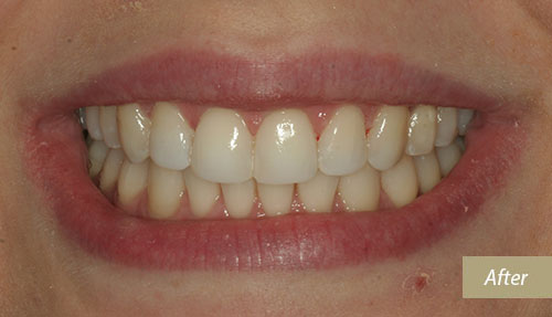 tooth whitening and Dental bonding After