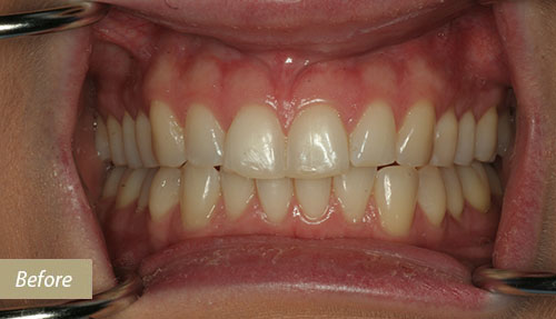 tooth whitening and Dental bonding Before