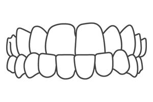 underbite – London Braces Clinic